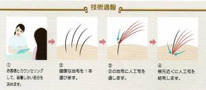 増毛の仕組み
